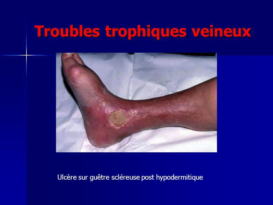 Troubles trophiques veineux Ulcère sur guêtre scléreuse post hypodermitique