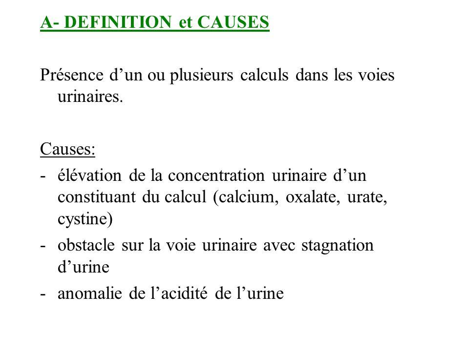 A- DEFINITION et CAUSES Présence dun ou plusieurs calculs dans les voies urinaires. Causes: -élévation de la concentration urinaire dun constituant du