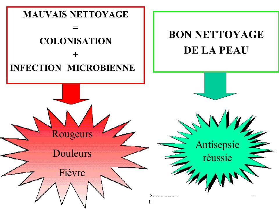 Nathalie PACAUD - IFSI Rochefort - 2010-2011- 9 MAUVAIS NETTOYAGE = COLONISATION + INFECTION MICROBIENNE BON NETTOYAGE DE LA PEAU Antisepsie réussie Rougeurs Douleurs Fièvre