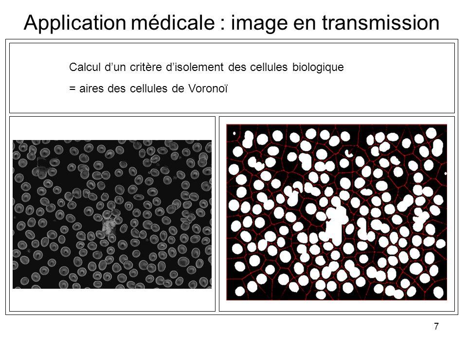 7 Calcul dun critère disolement des cellules biologique = aires des cellules de Voronoï Application médicale : image en transmission