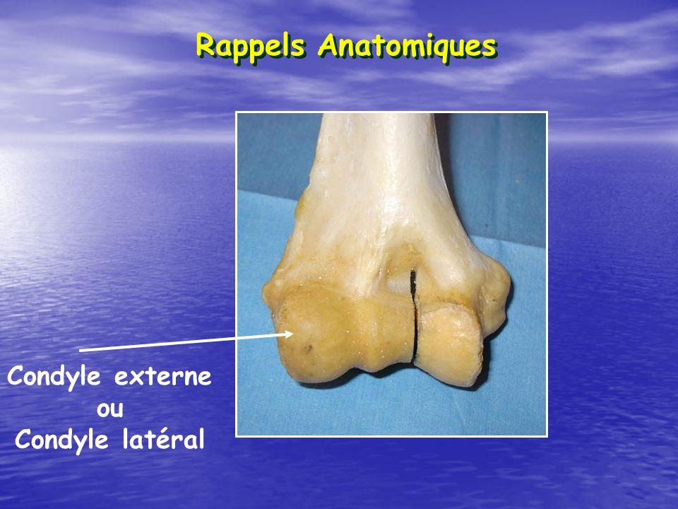 Condyle externe ou Condyle latéral