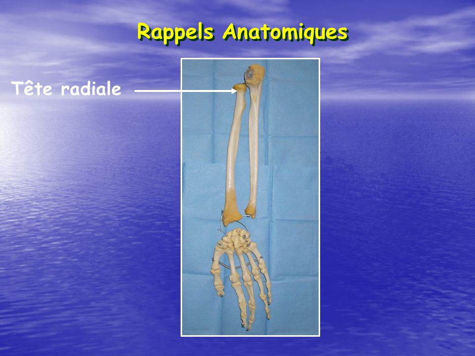 Tête radiale