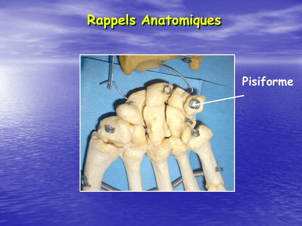 Pisiforme