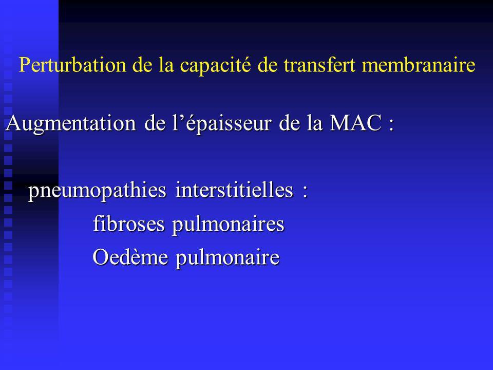 Perturbation de la capacité de transfert membranaire Restriction du lit capillaire pulmonaire : embolie pulmonaire … embolie pulmonaire …