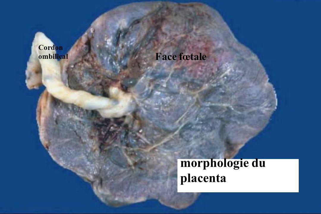 morphologie du placenta Face fœtale Cordon ombilical