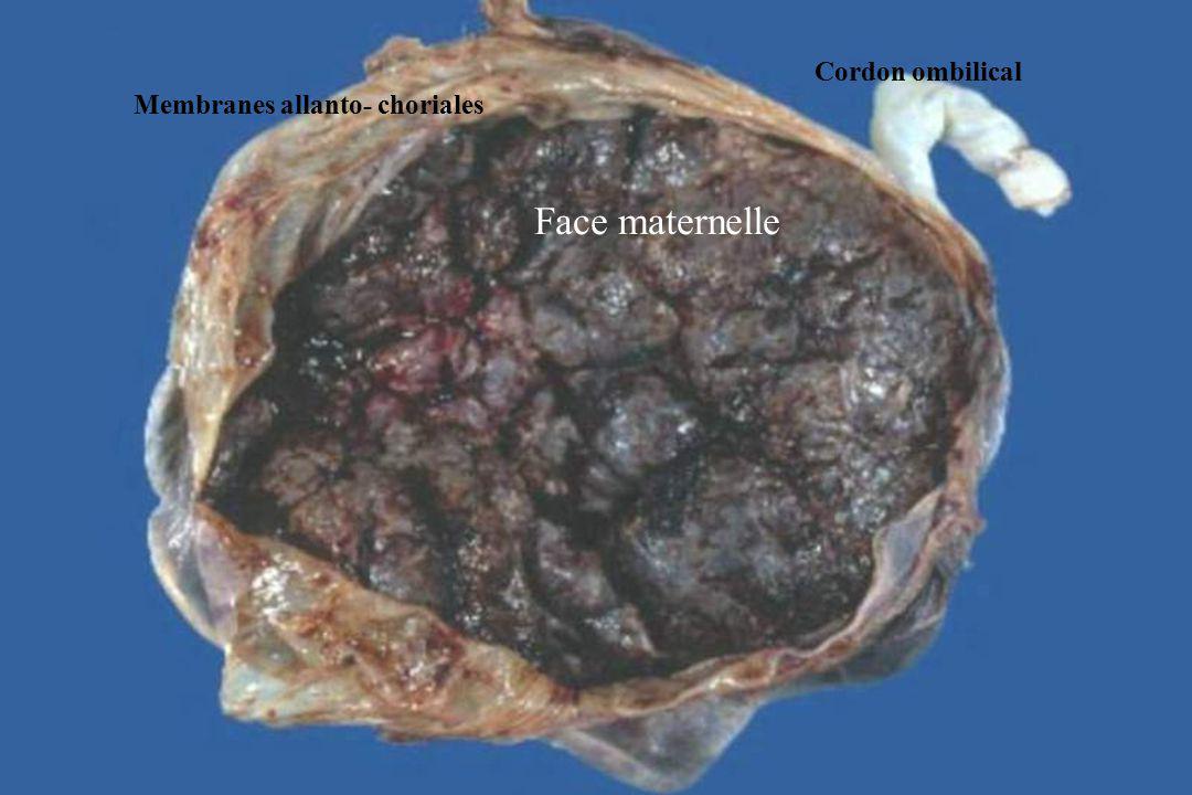 RAPPEL EMBRYOLOGIQUE Lovule est fécondé dans le tiers externe de la trompe utérine et se divise par segmentation au cours de son cheminement tubaire.
