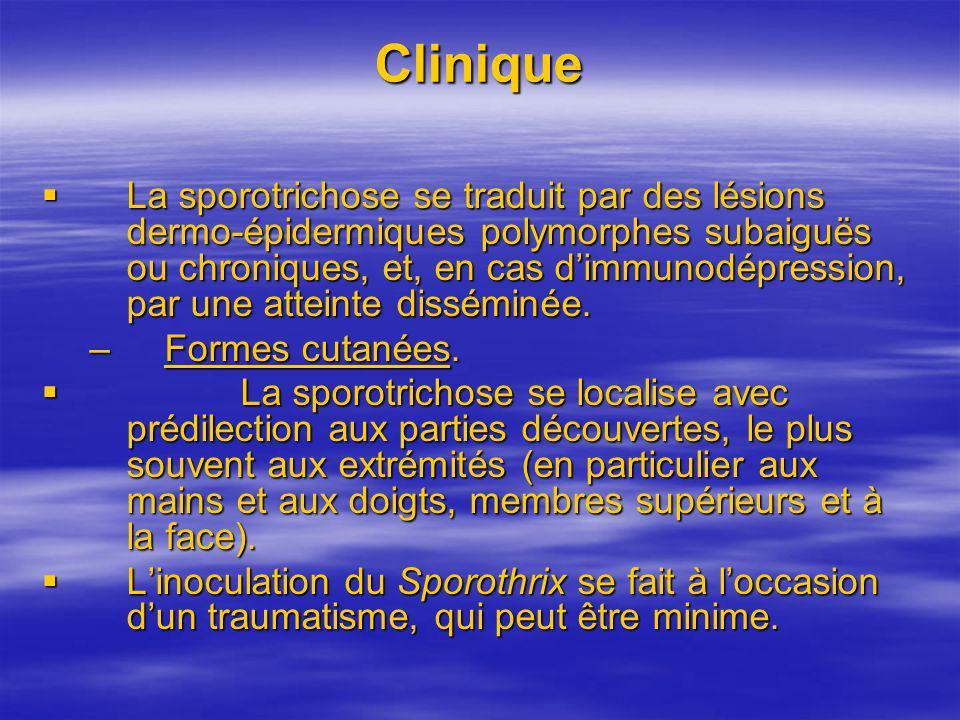 Clinique La sporotrichose se traduit par des lésions dermo-épidermiques polymorphes subaiguës ou chroniques, et, en cas dimmunodépression, par une att