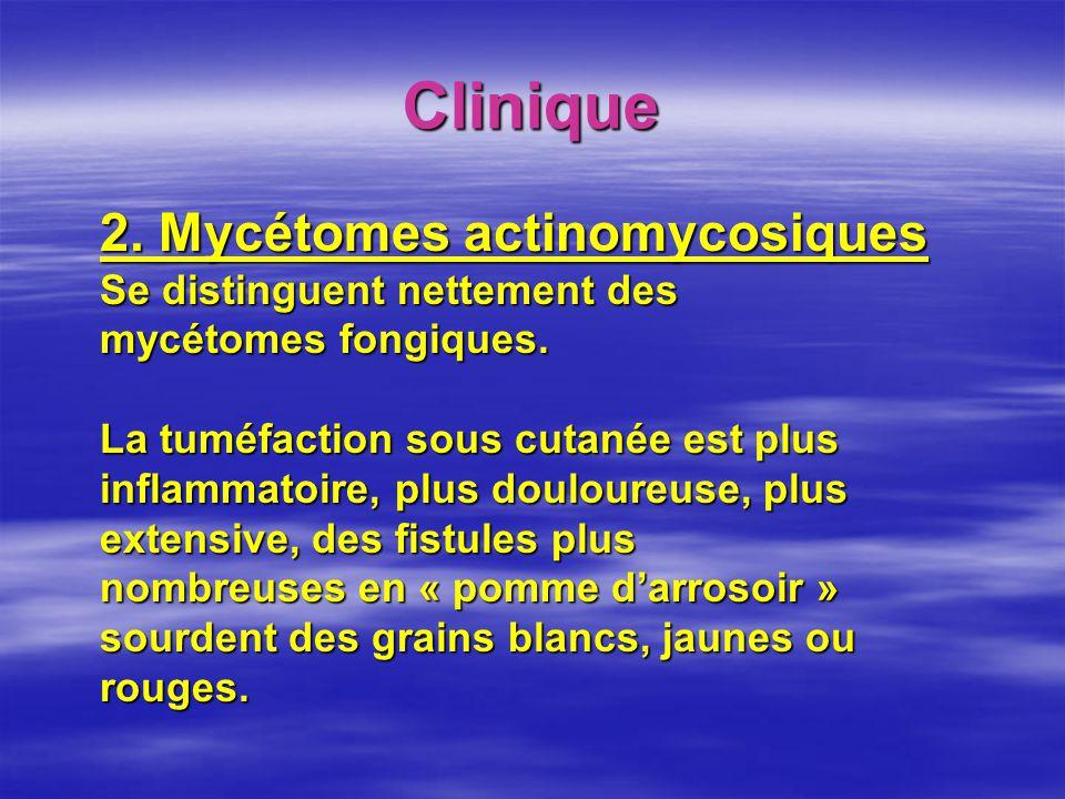 Clinique 2. Mycétomes actinomycosiques Se distinguent nettement des mycétomes fongiques. La tuméfaction sous cutanée est plus inflammatoire, plus doul
