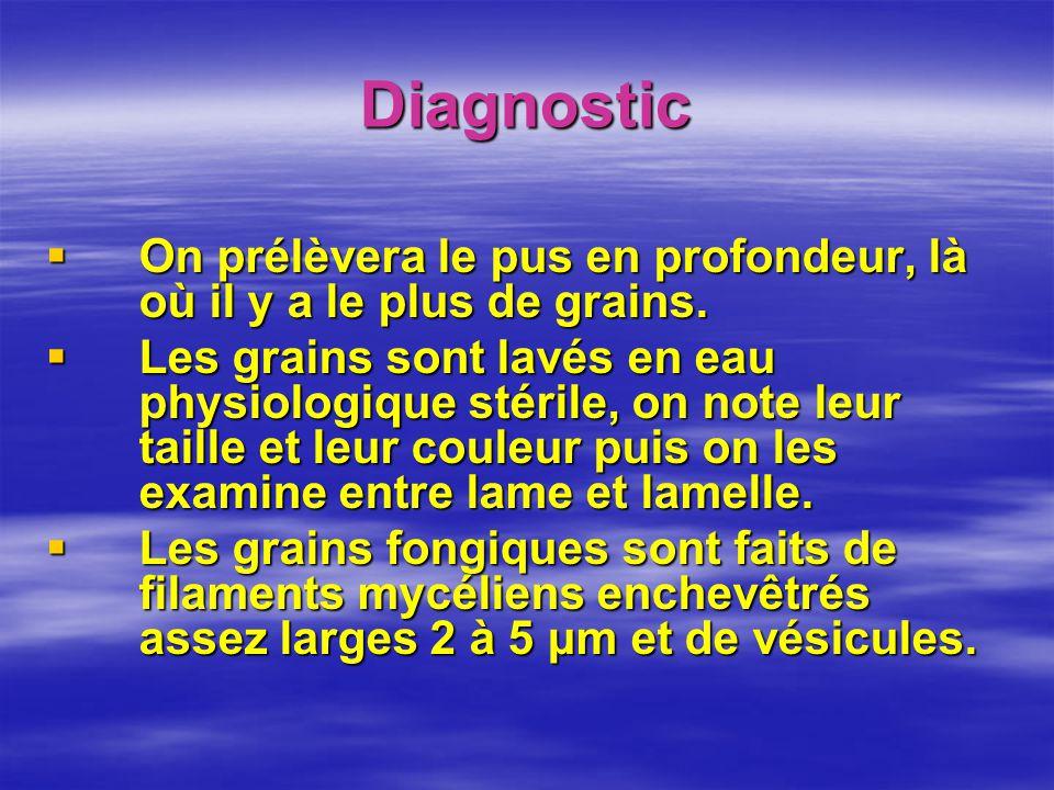 Diagnostic On prélèvera le pus en profondeur, là où il y a le plus de grains. On prélèvera le pus en profondeur, là où il y a le plus de grains. Les g
