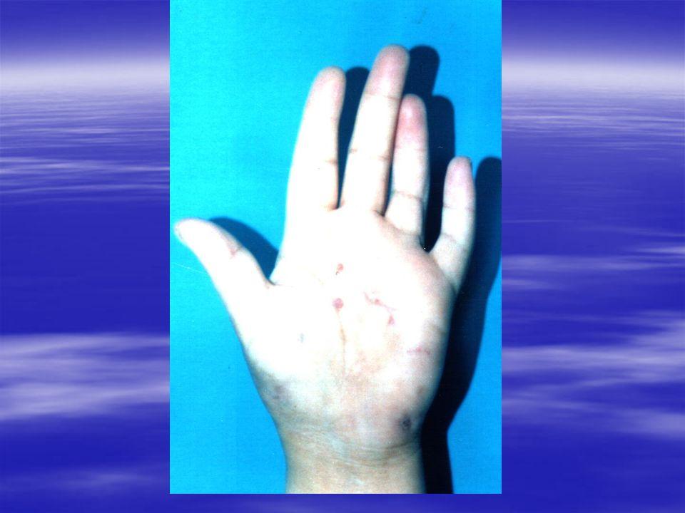 Traitement En ce qui concerne les mycétomes fongiques, même si les antifongiques savèrent le plus souvent insuffisants pour obtenir une guérison, il semble que les risques de reprise du processus soient moins importants si un traitement médical précède la chirurgie.