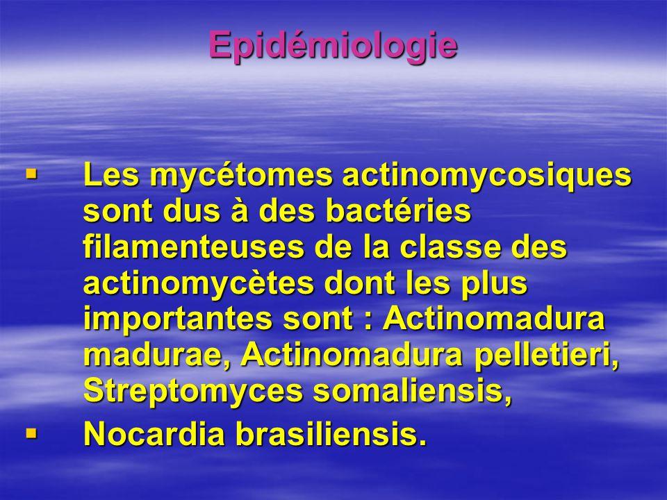 Epidémiologie Les mycétomes actinomycosiques sont dus à des bactéries filamenteuses de la classe des actinomycètes dont les plus importantes sont : Actinomadura madurae, Actinomadura pelletieri, Streptomyces somaliensis, Les mycétomes actinomycosiques sont dus à des bactéries filamenteuses de la classe des actinomycètes dont les plus importantes sont : Actinomadura madurae, Actinomadura pelletieri, Streptomyces somaliensis, Nocardia brasiliensis.
