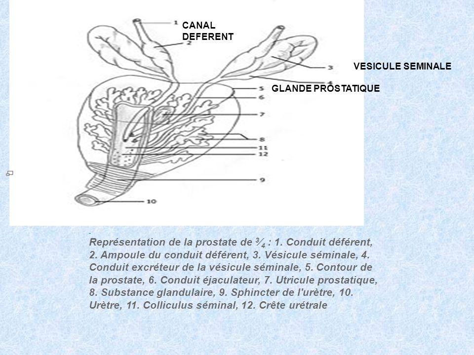 Représentation de la prostate de 3 4 : 1. Conduit déférent, 2. Ampoule du conduit déférent, 3. Vésicule séminale, 4. Conduit excréteur de la vésicule