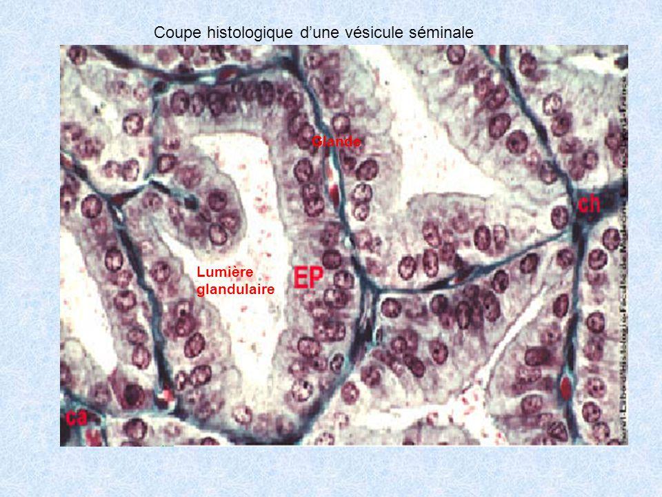 Coupe histologique dune vésicule séminale Lumière glandulaire Glande