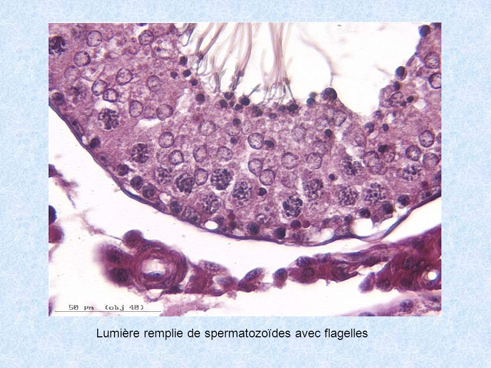 Lumière remplie de spermatozoïdes avec flagelles