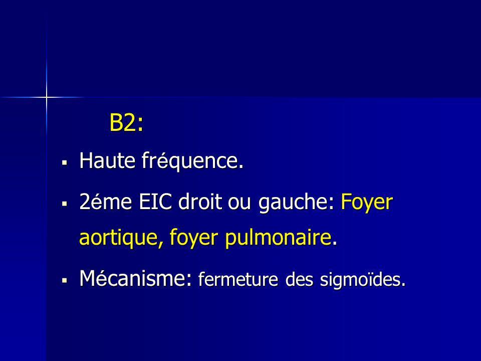 B2: Haute fr é quence. Haute fr é quence. 2 é me EIC droit ou gauche: Foyer aortique, foyer pulmonaire. 2 é me EIC droit ou gauche: Foyer aortique, fo