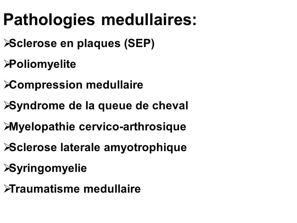 Pathologies medullaires: Sclerose en plaques (SEP) Poliomyelite Compression medullaire Syndrome de la queue de cheval Myelopathie cervico-arthrosique Sclerose laterale amyotrophique Syringomyelie Traumatisme medullaire
