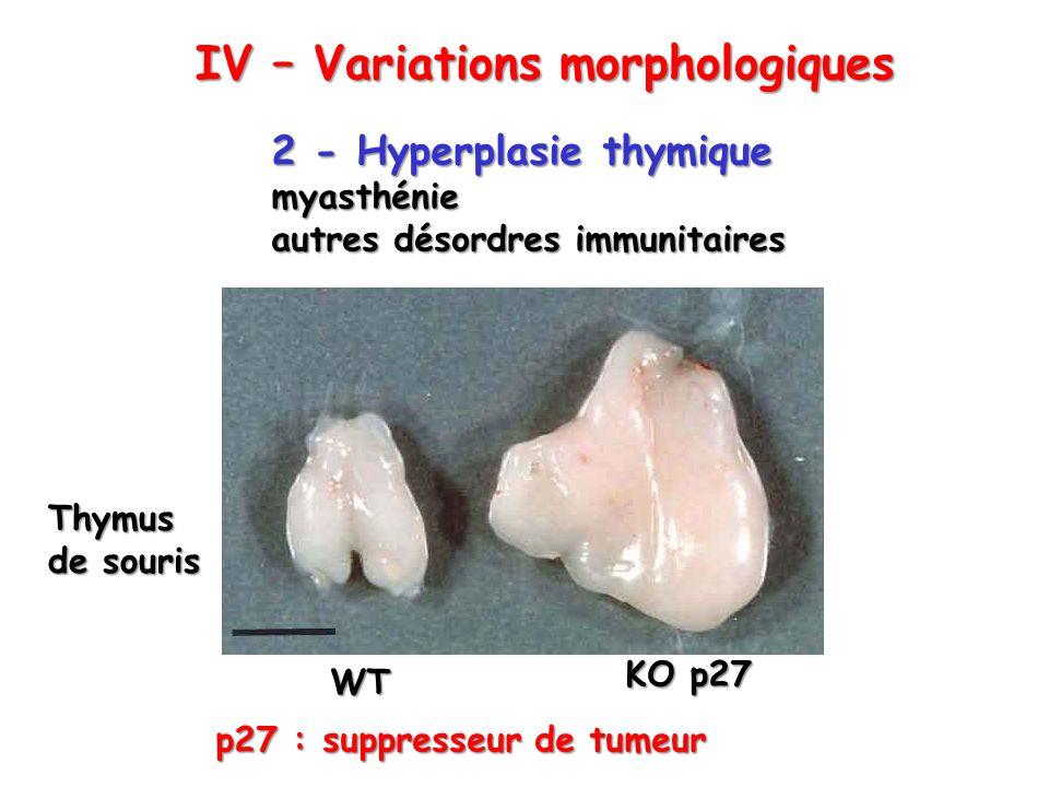 2 - Hyperplasie thymique myasthénie autres désordres immunitaires WT KO p27 Thymus de souris p27 : suppresseur de tumeur IV – Variations morphologique
