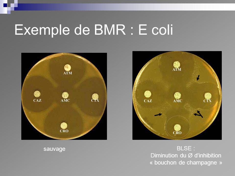 Exemple de BMR : E coli sauvage BLSE : Diminution du Ø dinhibition « bouchon de champagne »