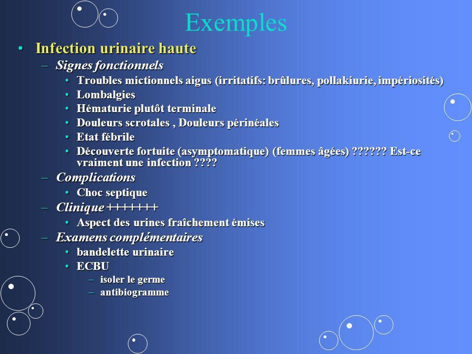 Exemples Infection urinaire hauteInfection urinaire haute –Signes fonctionnels Troubles mictionnels aigus (irritatifs: brûlures, pollakiurie, impérios