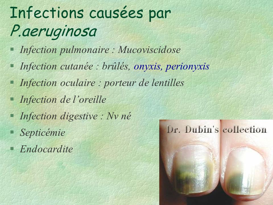 Infections causées par P.aeruginosa §Infection pulmonaire : Mucoviscidose §Infection cutanée : brûlés, onyxis, perionyxis §Infection oculaire : porteu