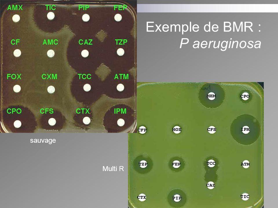 Exemple de BMR : P aeruginosa sauvage Multi R