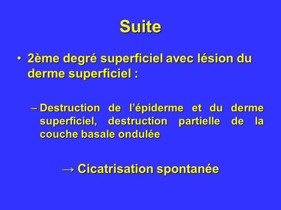 Suite 2ème degré superficiel avec lésion du derme superficiel :2ème degré superficiel avec lésion du derme superficiel : –Destruction de lépiderme et