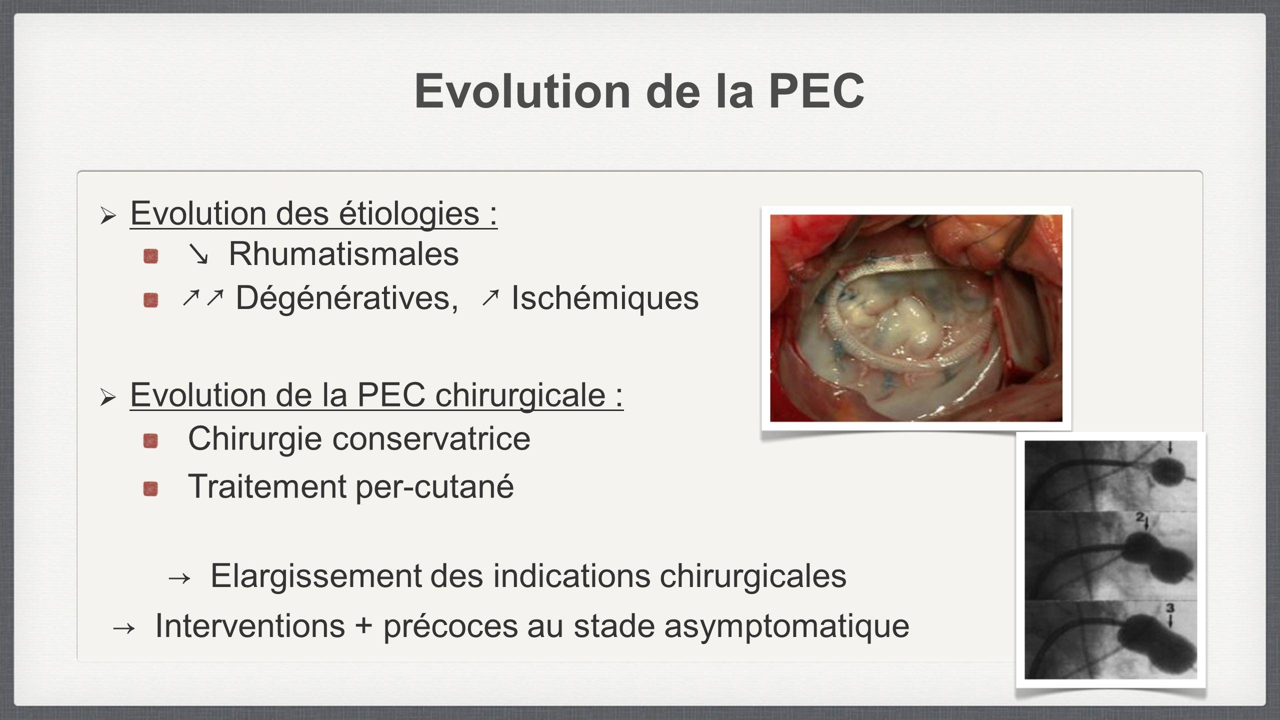 Evolution de la PEC Evolution des étiologies : Rhumatismales Dégénératives, Ischémiques Evolution de la PEC chirurgicale : Chirurgie conservatrice Tra