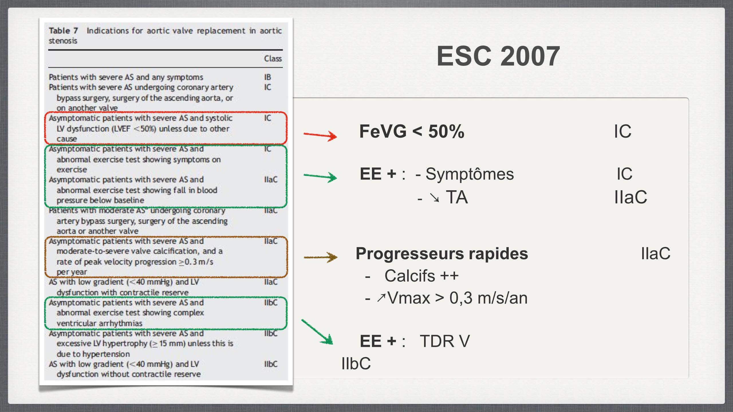 ESC 2007 FeVG < 50% IC EE + : - Symptômes IC - TA IIaC EE + : TDR V IIbC Progresseurs rapides IIaC - Calcifs ++ - Vmax > 0,3 m/s/an