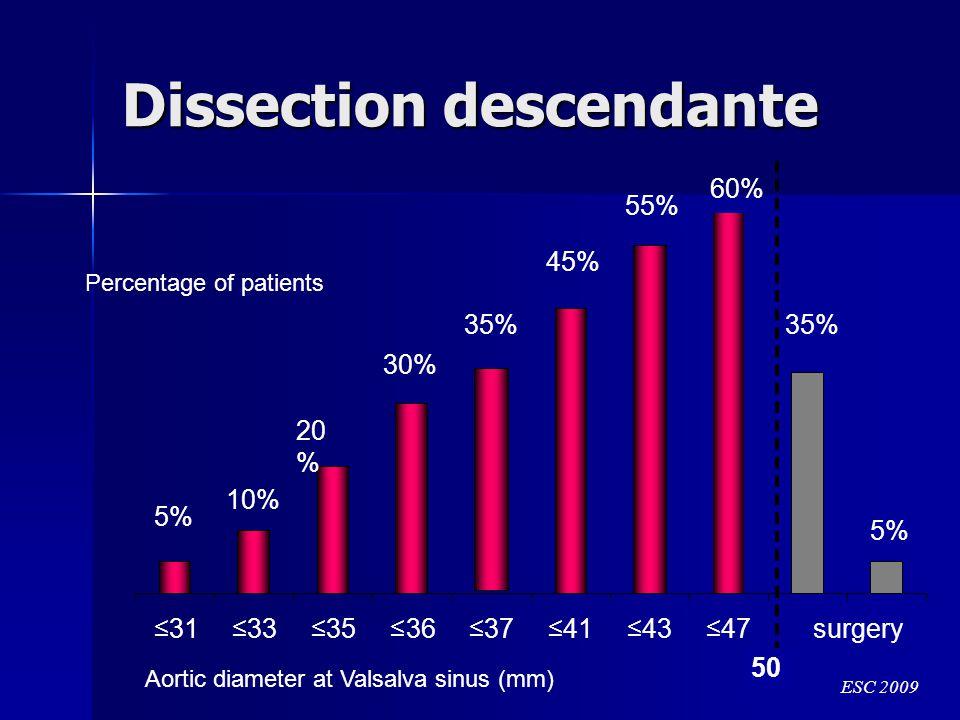 5% 10% 20 % 30% 35% 45% 55% 60% 35% 5% 3133353637414347 surgery Aortic diameter at Valsalva sinus (mm) Percentage of patients 50 Dissection descendant
