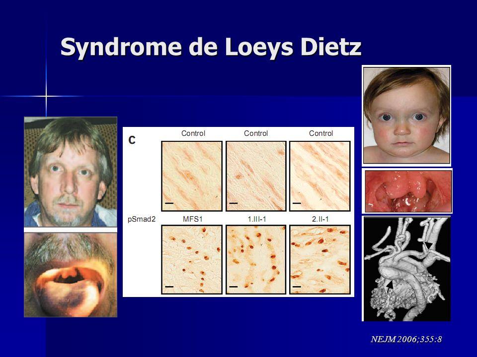 Syndrome de Loeys Dietz NEJM 2006;355:8