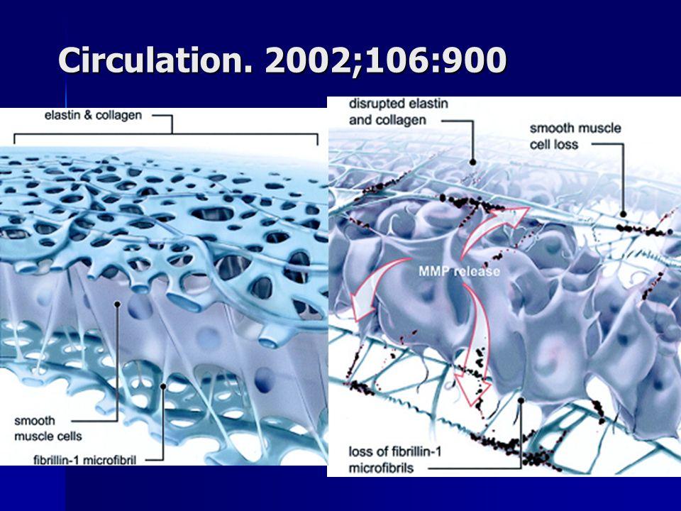 Voie TGB-béta… Post natal TGFB antibody Habashi JP Science 2006;312:117