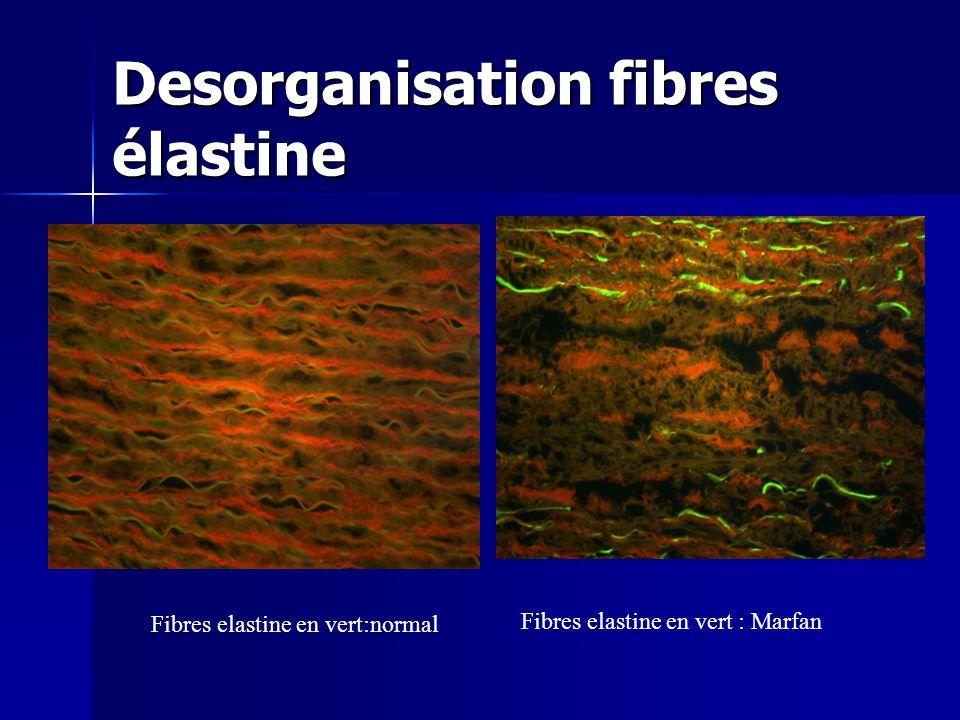 Desorganisation fibres élastine Fibres elastine en vert:normal Fibres elastine en vert : Marfan