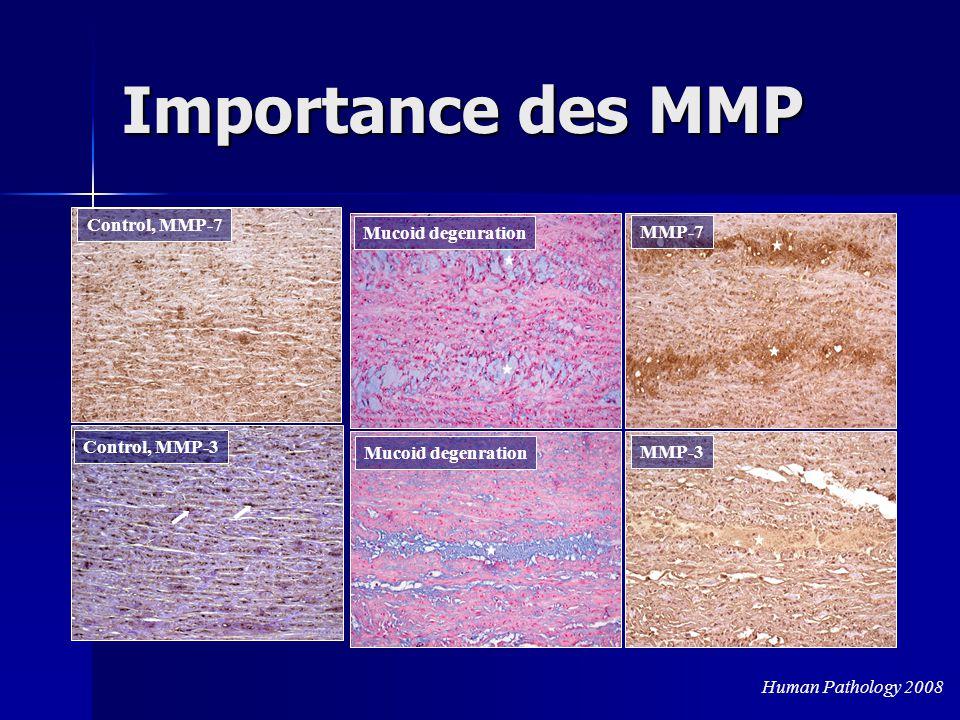 Importance des MMP Mucoid degenration MMP-7 MMP-3 Control, MMP-3 Control, MMP-7 Human Pathology 2008