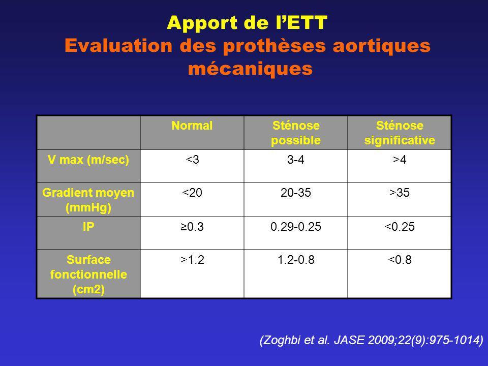 Apport de lETT Evaluation des prothèses aortiques mécaniques NormalSténose possible Sténose significative V max (m/sec)<33-4>4 Gradient moyen (mmHg) <