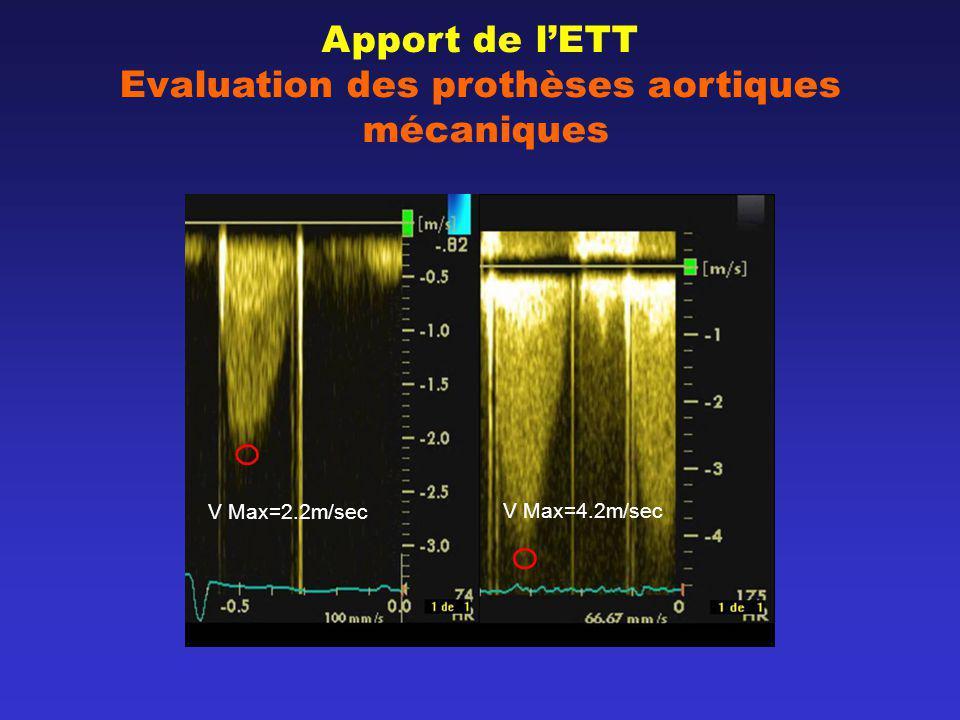 Apport de lETT Evaluation des prothèses aortiques mécaniques V Max=2.2m/sec V Max=4.2m/sec