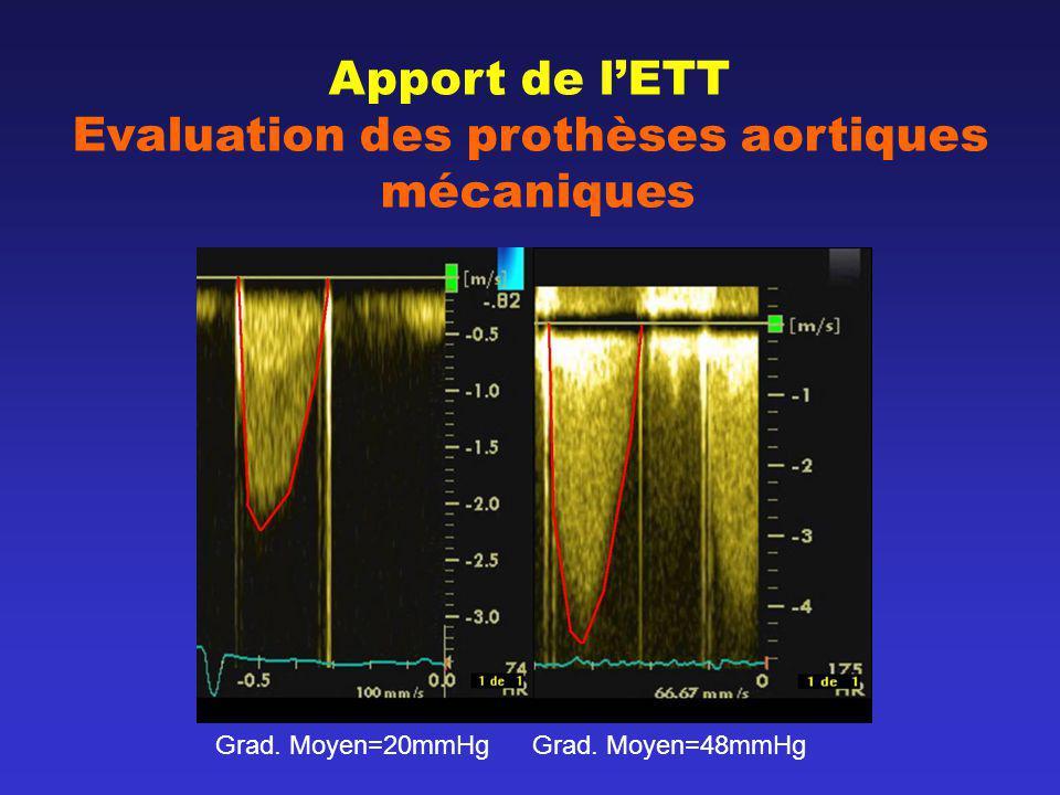 Apport de lETT Evaluation des prothèses aortiques mécaniques Grad. Moyen=20mmHg Grad. Moyen=48mmHg