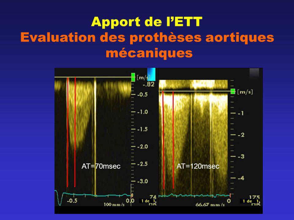 Apport de lETT Evaluation des prothèses aortiques mécaniques AT=70msec AT=120msec