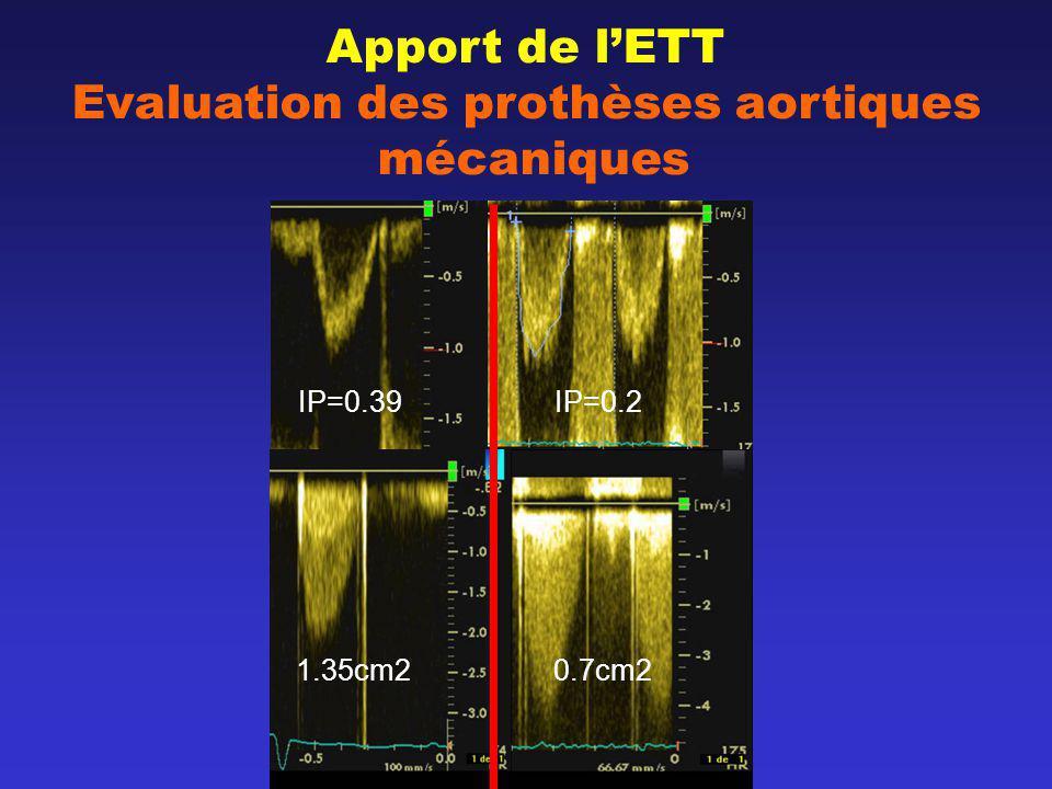 Apport de lETT Evaluation des prothèses aortiques mécaniques IP=0.39 IP=0.2 1.35cm2 0.7cm2