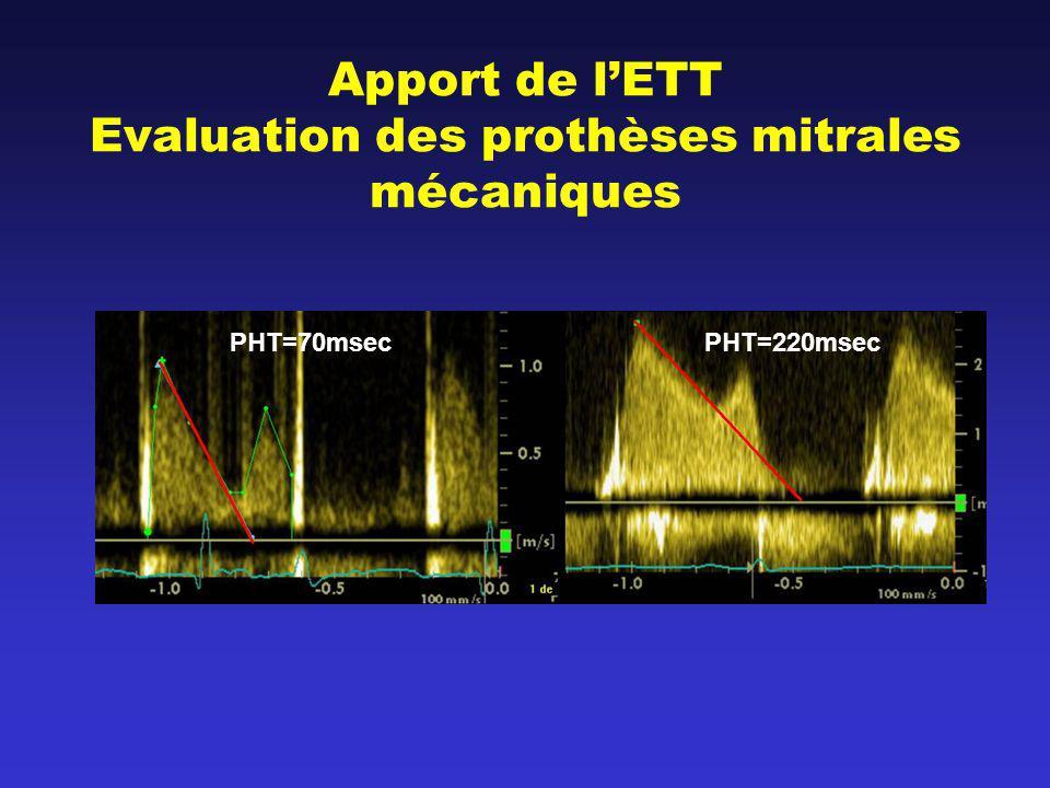 Apport de lETT Evaluation des prothèses mitrales mécaniques PHT=70msecPHT=220msec