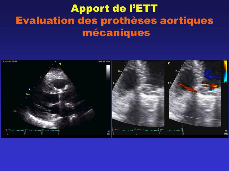Apport de lETT Evaluation des prothèses aortiques mécaniques NormalSténose possible Sténose significative V max (m/sec)<33-4>4 Gradient moyen (mmHg) <2020-35>35 IP0.30.29-0.25<0.25 Surface fonctionnelle (cm2) >1.21.2-0.8<0.8 (Zoghbi et al.