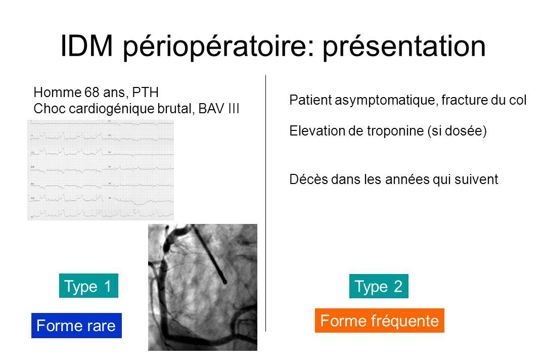 IDM périopératoire: présentation Homme 68 ans, PTH Choc cardiogénique brutal, BAV III Forme rare Patient asymptomatique, fracture du col Elevation de troponine (si dosée) Décès dans les années qui suivent Forme fréquente Type 1 Type 2