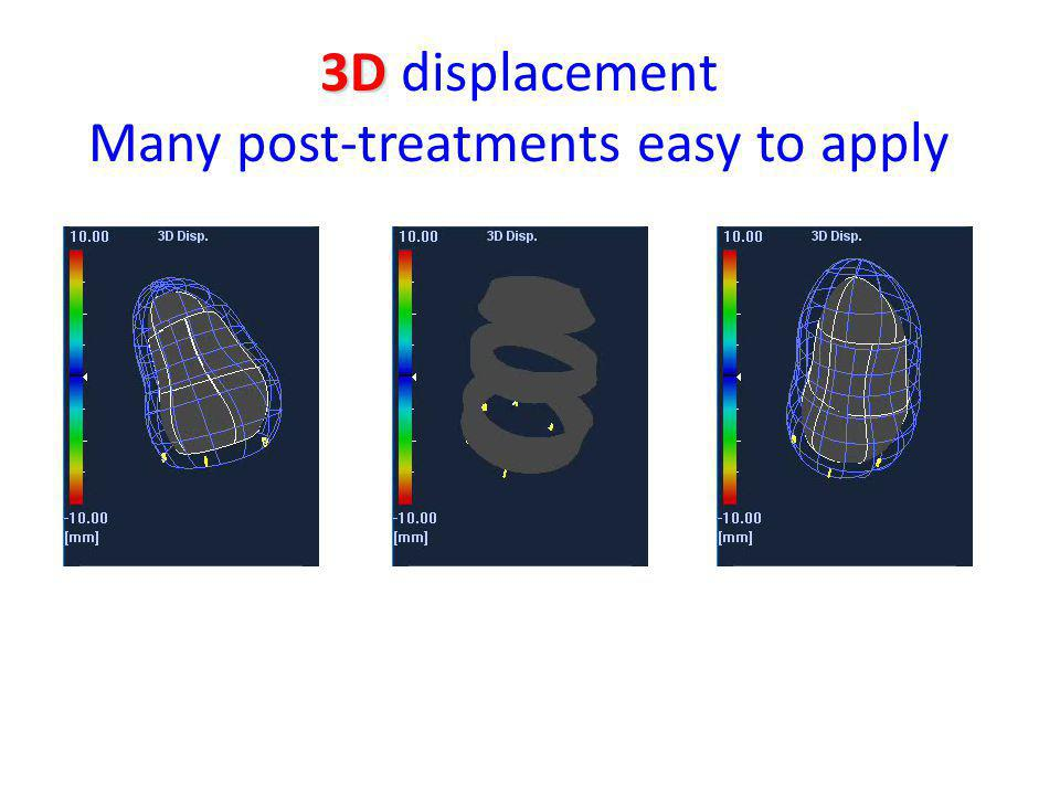 3D 3D displacement Many post-treatments easy to apply