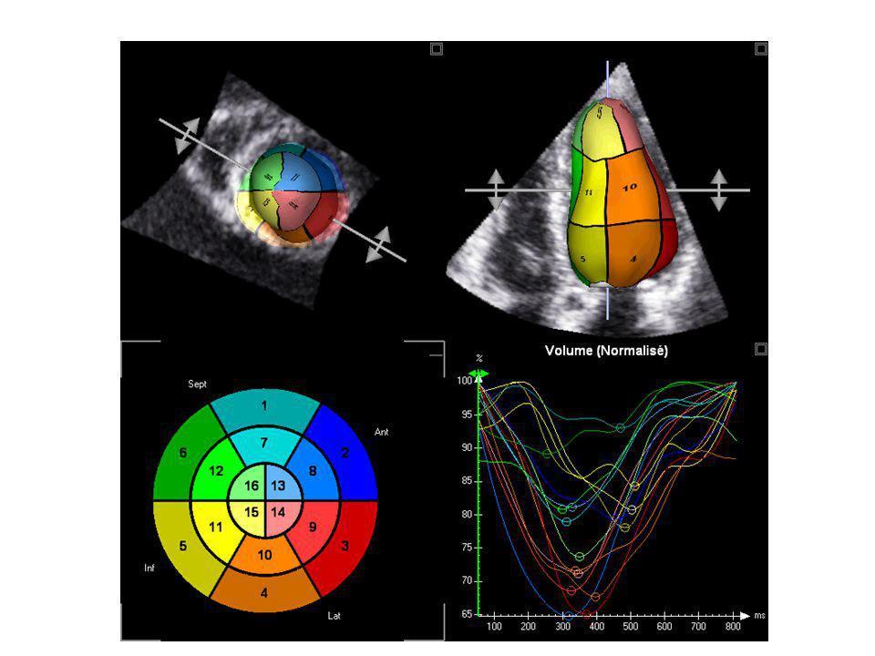 3D Speckle Tracking 3D Longitudinal strain