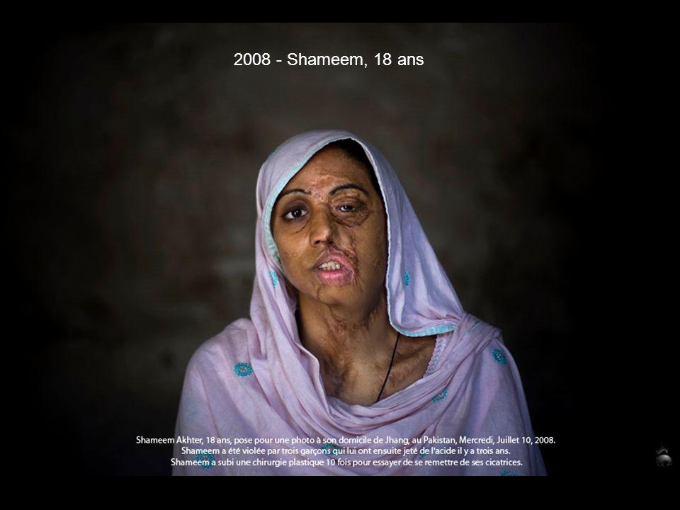 2008 - Shameem, 18 ans