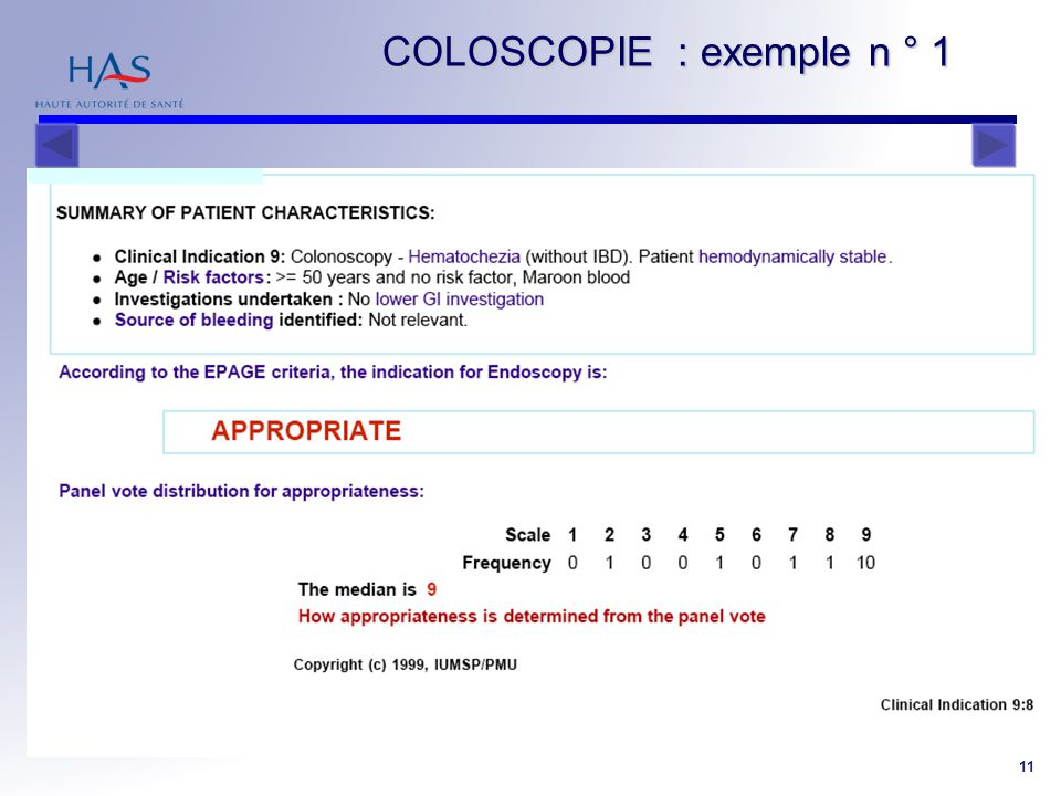 RPS Coloscopie 11 COLOSCOPIE : exemple n ° 1