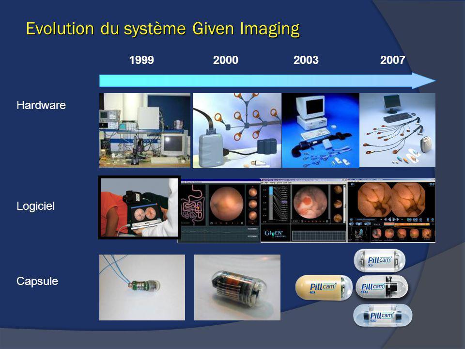 Hardware Logiciel Capsule 1999200720002003 Evolution du système Given Imaging