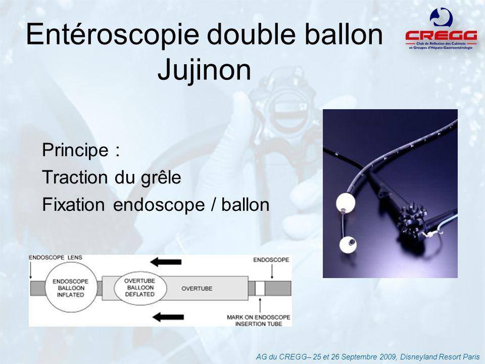 AG du CREGG– 25 et 26 Septembre 2009, Disneyland Resort Paris Entéroscopie double ballon Jujinon