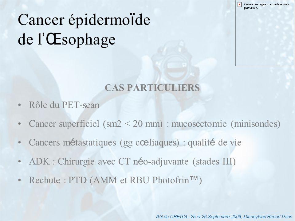AG du CREGG– 25 et 26 Septembre 2009, Disneyland Resort Paris Traitement de référence pour toute tumeur T2 : traitement combiné : CT péri-opératoire+gastrectomie Role du bilan pré-thérapeutique (EES, TDM) RT-CT post-op (Mc Donald) : lexception Adénocarcinome gastrique 5Fu+ CDDP (ou LV5Fu2-CDDP) : 3 cures avant 3 cures après Gastrectomie totale + curage D1 15 gg Gastrectomie des 4/5 si tumeur de lantre Essai MAGIC N.Engl J Med 2006; 355:11-20