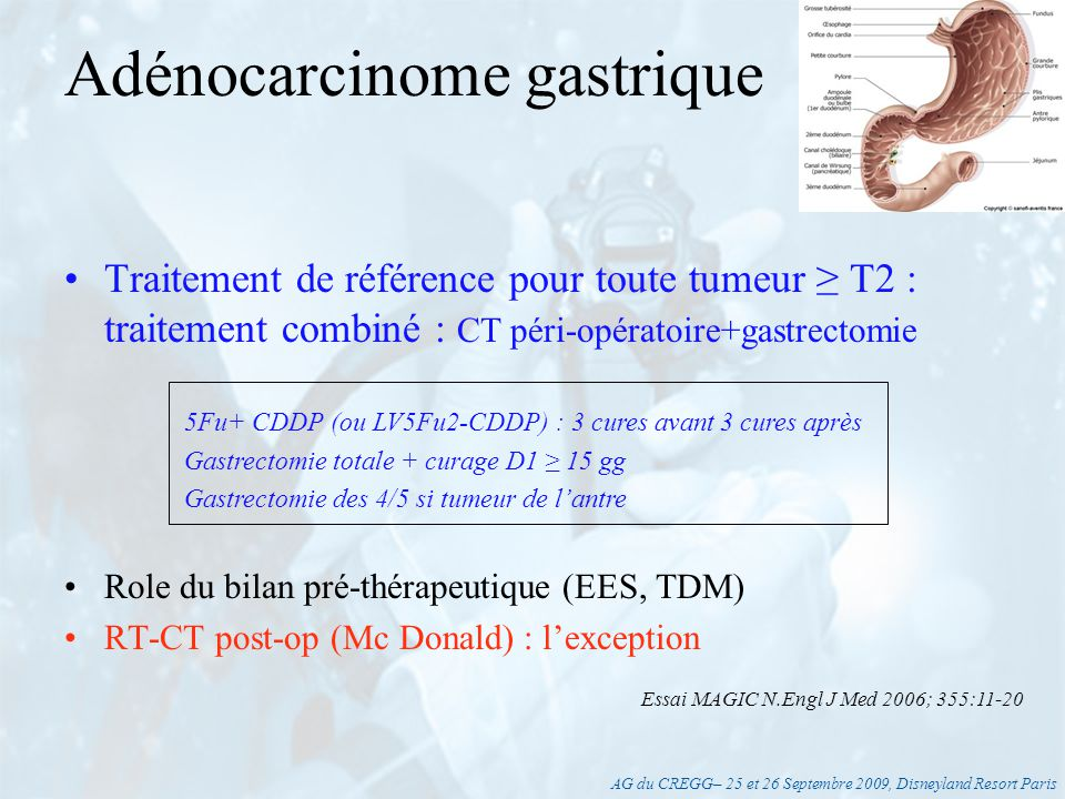 AG du CREGG– 25 et 26 Septembre 2009, Disneyland Resort Paris Tumeurs T1 : –CHIRURGIE EXCLUSIVE –Mucosectomie Formes localement avancées Tumeurs métastatiques CT palliative (*) ± RT Patients inopérables (*) 5Fu-CDDP ± Docetaxel, FolFox (CBU2), Xeloda Dépistage familial H.pylori Adénocarcinome gastrique