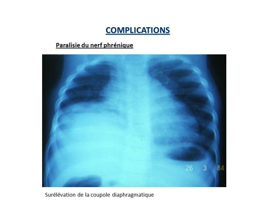 COMPLICATIONS Paralisie du nerf phrénique Surélévation de la coupole diaphragmatique